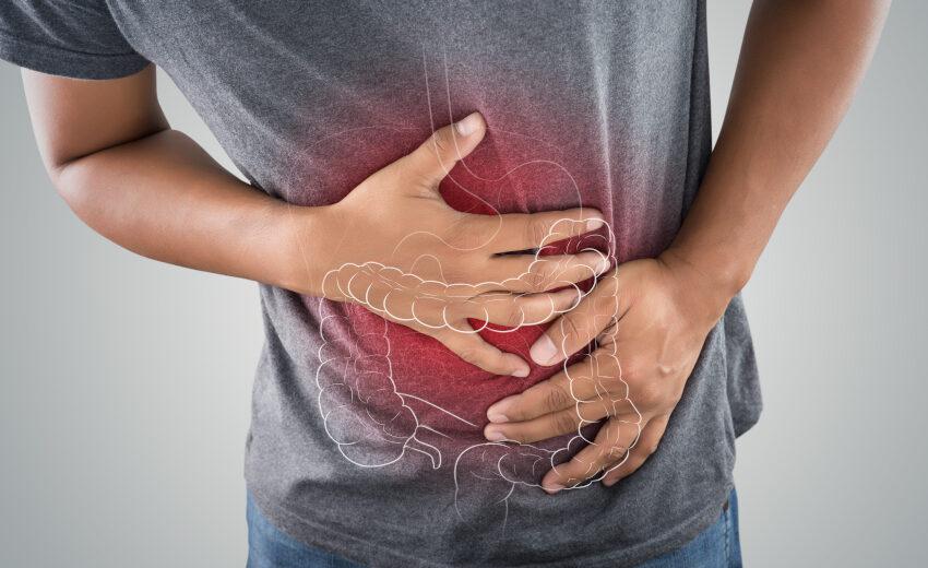 CBD при синдром на раздразнените черва